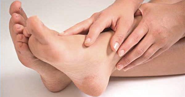 Cracked Heels Remedies in Hindi